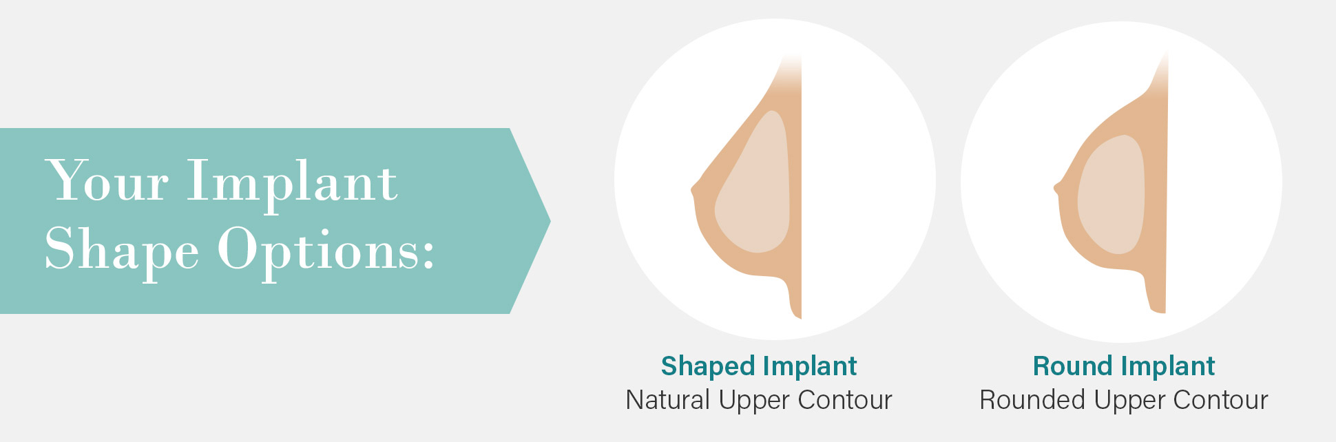 Your implant shape options