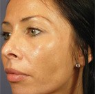 VI Peel patient with acne after