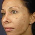 VI Peel patient with acne before
